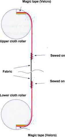 'magic-tape' fabric fixation method